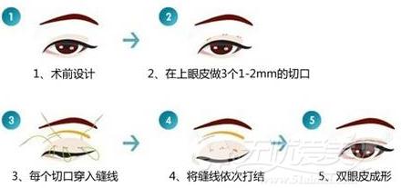 沈阳艾咪韩式三点双眼皮