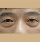 重庆真伊去眼袋手术案例