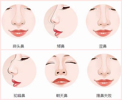 关于整形鼻子有几种