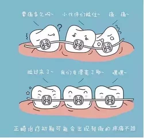 正畸期间保持口腔卫生很重要:戴用矫治器之后,食物比较容易积存在托槽、结扎丝和弓丝之间,细菌就利用这些食物碎屑进行繁殖和代谢,产生各种代谢产物如有机酸和毒素等,有机酸可以使牙齿脱矿,毒素则可以引起牙龈炎症。时间一长各种病症就出现了。因此,在矫正牙齿期间保持口腔卫生对整个矫治计划的顺利进行非常重要。  如果你也想矫正牙齿,现在就点击在线咨询进行预约吧! 编辑:张松鹤