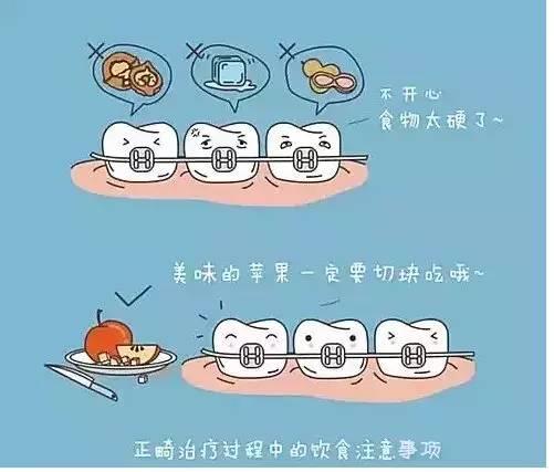 正畸过程注意饮食