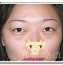 成都米亚整形祛眼袋手术案例术前