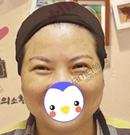 长沙雅美热玛吉面部提升让我重返25岁!