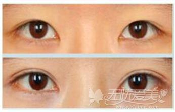 淮安苏美尔双眼皮手术前后对比