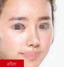 上海时光整形鼻翼缩小+鼻尖整形案例