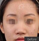 上海时光整形鼻翼缩小+假体隆鼻案例