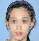 广州军美鼻部整形术前术后照片