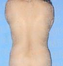 广州军美吸脂术术前术后对比照