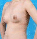 自体脂肪移植术前术后对比照