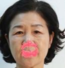 芜湖瑞丽切眉手术+面部提升案例