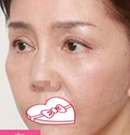 芜湖瑞丽双眼皮+切眉手术案例
