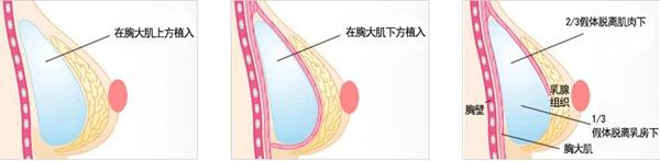 广州韩妃仿生隆胸手术方法