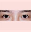 锦州锦美埋线双眼皮手术案例