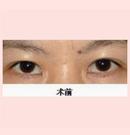 锦州锦美韩式三点双眼皮案例