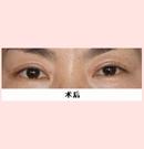 锦州锦美切开法双眼皮案例