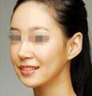 南京康美注射瘦脸针整形案例