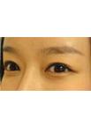 快来看我在青海省西宁交通医院做双眼皮后三个月真实案例