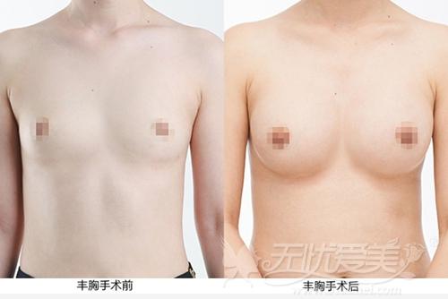 泸州陈清假体隆胸半年案例