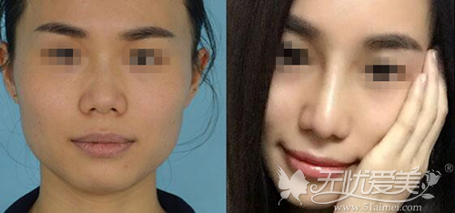 广西南宁梦想微雕隆鼻前后对比案例(前面)