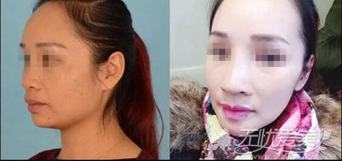 广西南宁梦想微雕隆鼻前后对比案例(侧面)