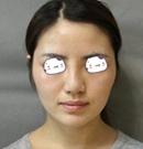 哈尔滨王医生改脸型手术 塑造完美小V脸