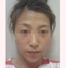 哈尔滨王仁根专家面部脂肪填充案例 年轻十岁不是梦