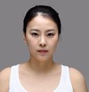 【真实经历】我在韩国原辰面部轮廓整形前后对比照片