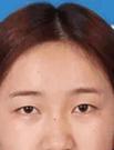 【动图】真人案例揭秘大连艺星美杜莎双眼皮的效果如何