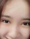 【动图】真人案例揭秘大连艺星美杜莎双眼皮的效果如何术后