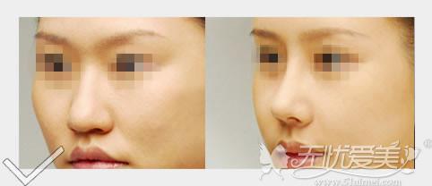 大连艺星BSK隆鼻注重鼻型自然
