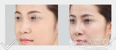 大连艺星BSK隆鼻侧面前后对比