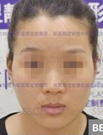 【内附多图】我在北京新星靓做FCC面部脂肪填充后焕然新生