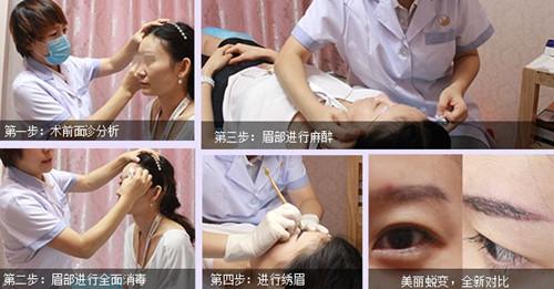 北京丽都半永久纹绣流程