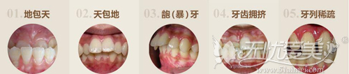 牙齿问题影响脸部的美观