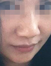 有图有真相!我在深圳睿京做的鼻综合实现了完美人生