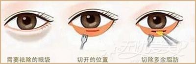 传统去眼袋手术方法