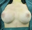 【真人秀】法国美女在天津美莱假体隆胸全过程 罩杯从A升C