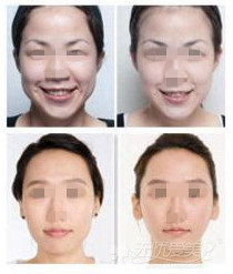 大同美神瘦脸针案例