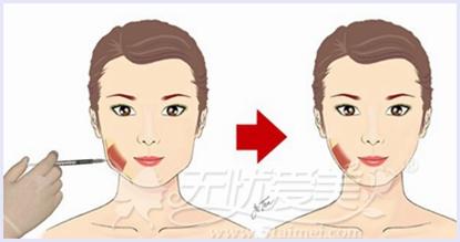 大同美神瘦脸注射过程