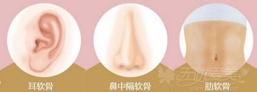 郑州欧兰自体软骨隆鼻