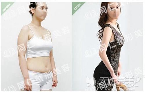 宁波同仁埋线减肥案例
