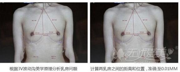 哈医大隆胸手术术前测量