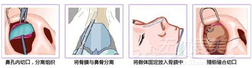 怀化韩美假体隆鼻怎么样?医院用案例为你解析