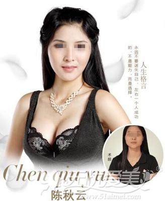 福州台江整形隆胸案例
