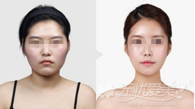 上海华美颧骨整形案例