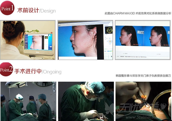 上海玫瑰隆鼻手术设计及专家