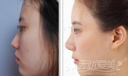 上海玫瑰隆鼻手术案例