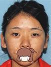 北京京民整形医院双眼皮+假体隆鼻手术 让我从女汉子变女神