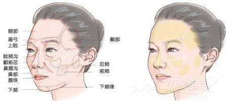 韩国will整形外科自体脂肪移植填充部位