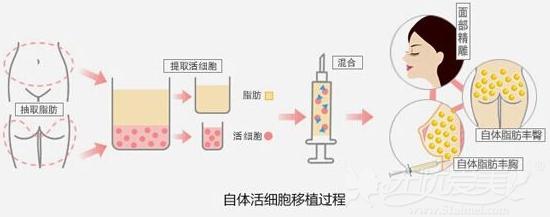 韩国will整形外科自体脂肪移植过程